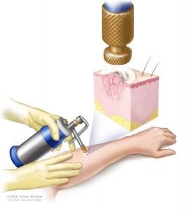 kriyoterapi-tedavisi